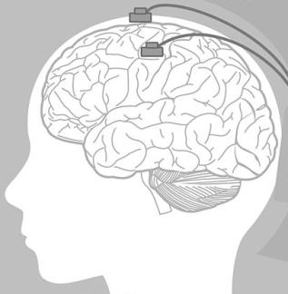 ElectrodesBrain